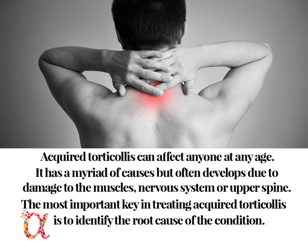 Acquired torticollis can affect anyone at any age.  It has a myriad of causes but often develops due to damage to the muscles, nervous system or upper spine. The most important key in treating acquired torticollis is to identify the root cause of the condition.