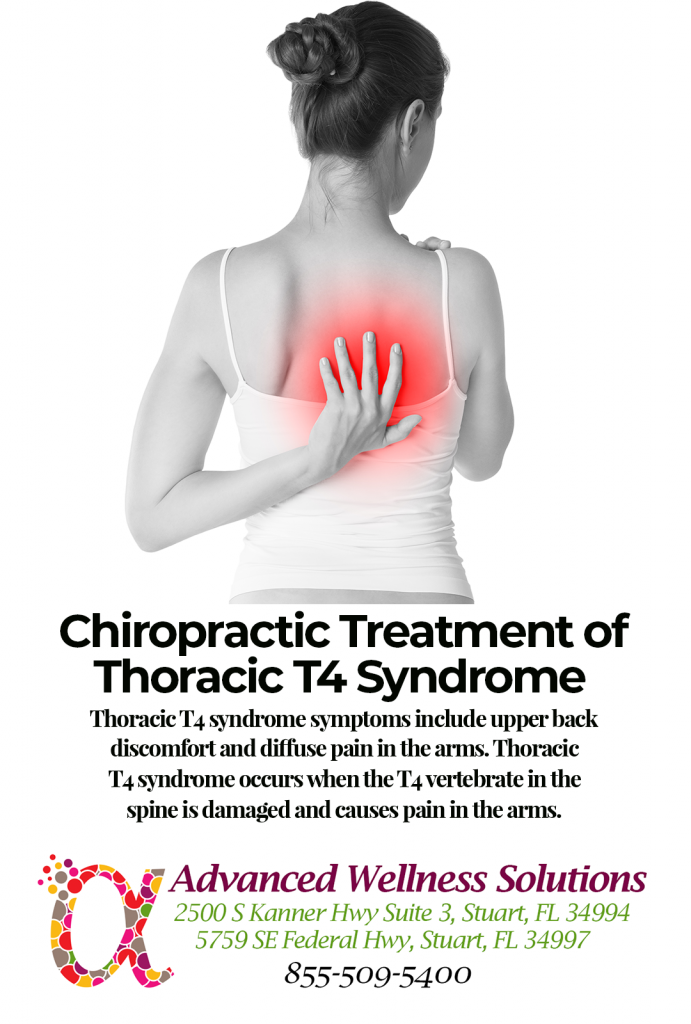 Thoracic T4 Syndrome