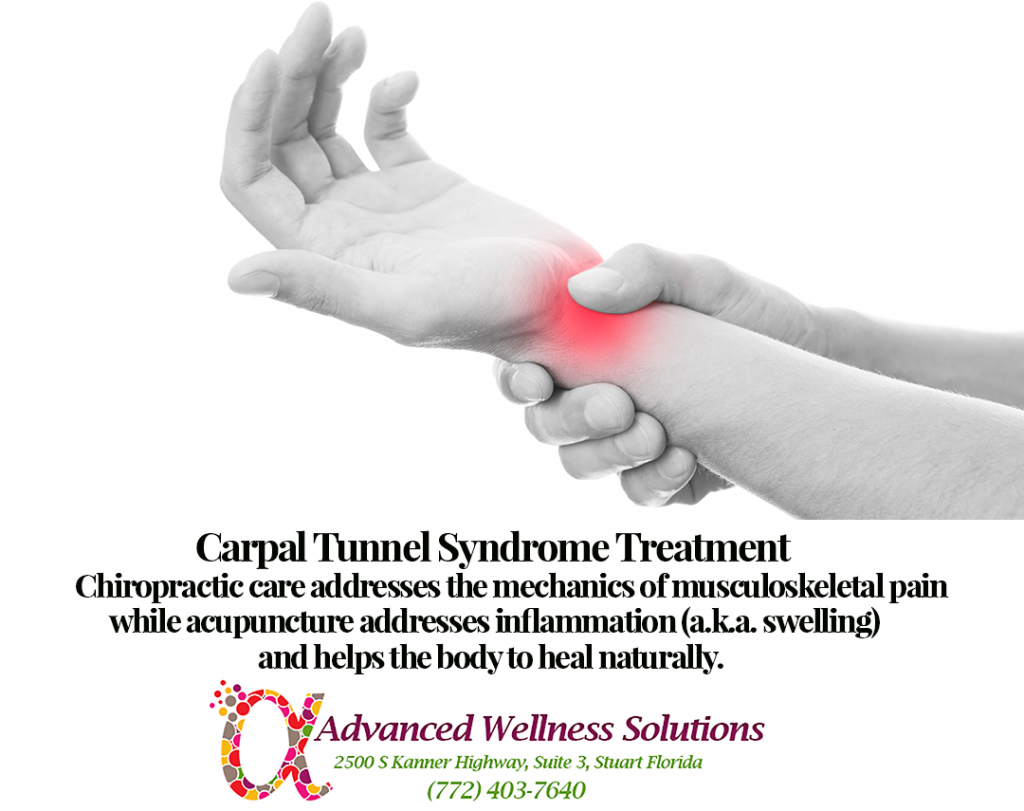 Carpal Tunnel Syndrome Treatment:Chiropractic care addresses the mechanics of musculoskeletal pain while acupuncture addresses inflammation (causing the swelling) and helps natural healing to occur in the body.