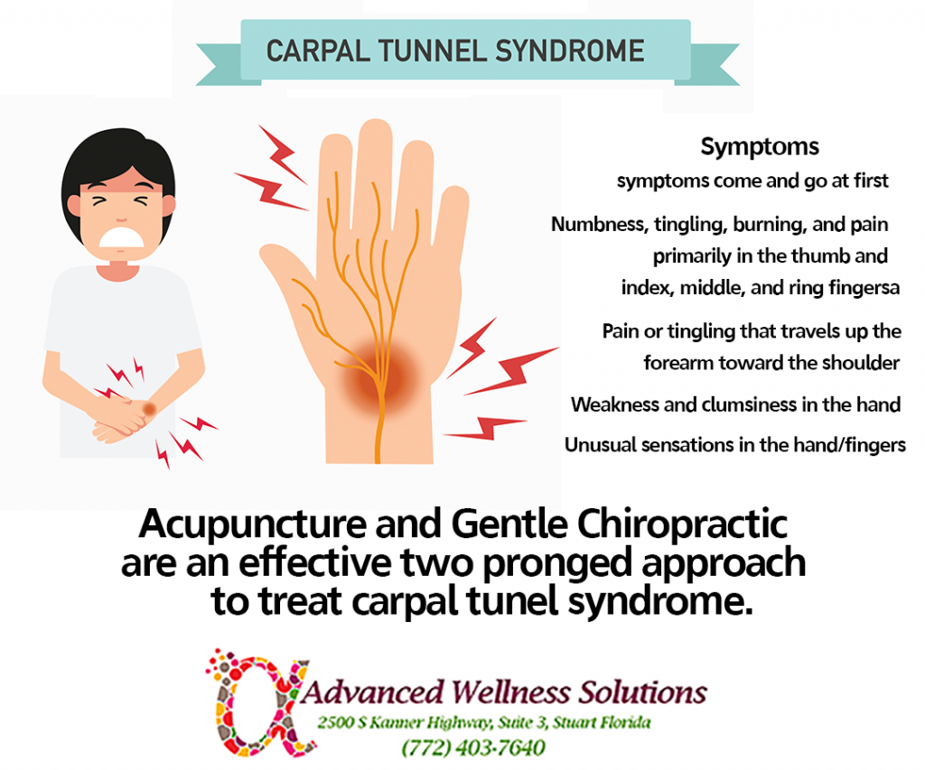 Carpal Tunnel Syndrome Symptoms: symptoms come and go at first. They include numbness, tingling, burning and pain, primarily in the thumb, index, middle and ring fingers. Pain or tingling that travels up the forearm toward the shoulder. Weakness and clumbiness in the hand. Unusual sensation in the hand/fingers. Acupuncture and Gentle Chiropractic are an effective two pronged approach to treating carpal tunnel syndrome.