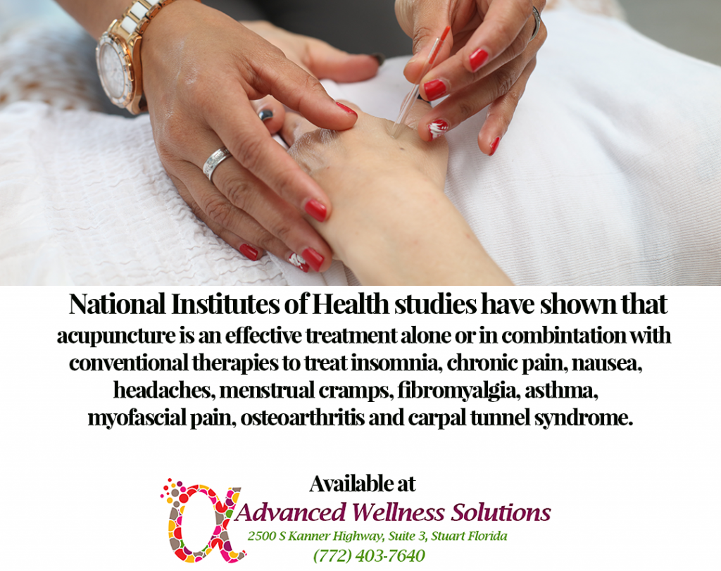 National Institutes of Health studies have shown that acupuncture is an effective treatment