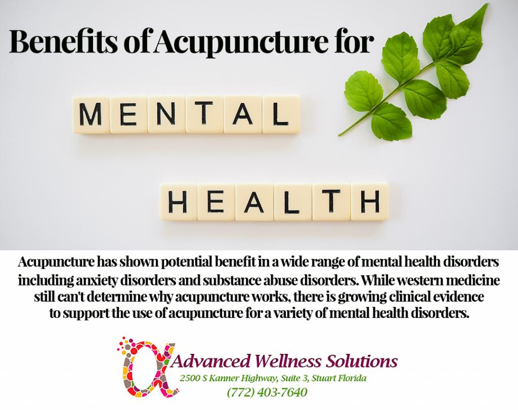 Benefits of Acupuncture for Mental Health