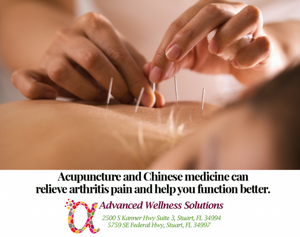 Acupuncture and Chinese medicine can relieve arthritis pain and help you function better.