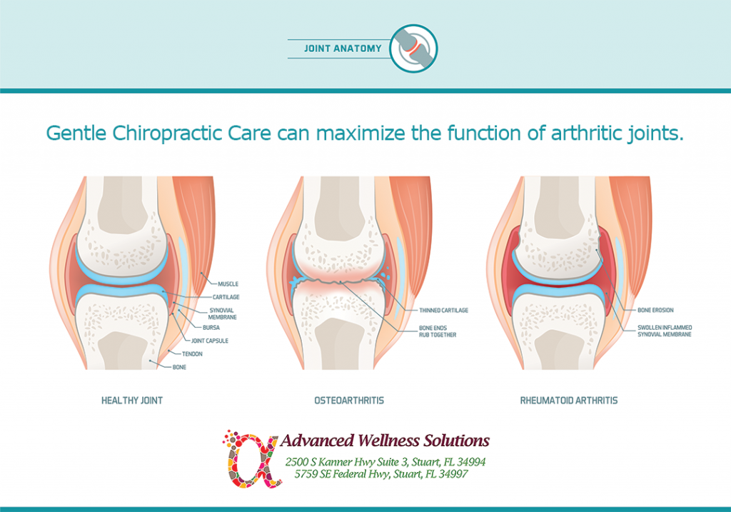 Gentle Chiropractic Care maximizes the function of arthritic joints.